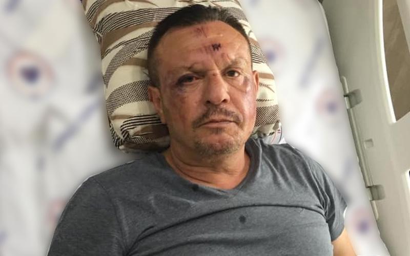 O kavgadan sonra Denizlispor Başkanı Ali Çetin'in ilk fotoğrafı