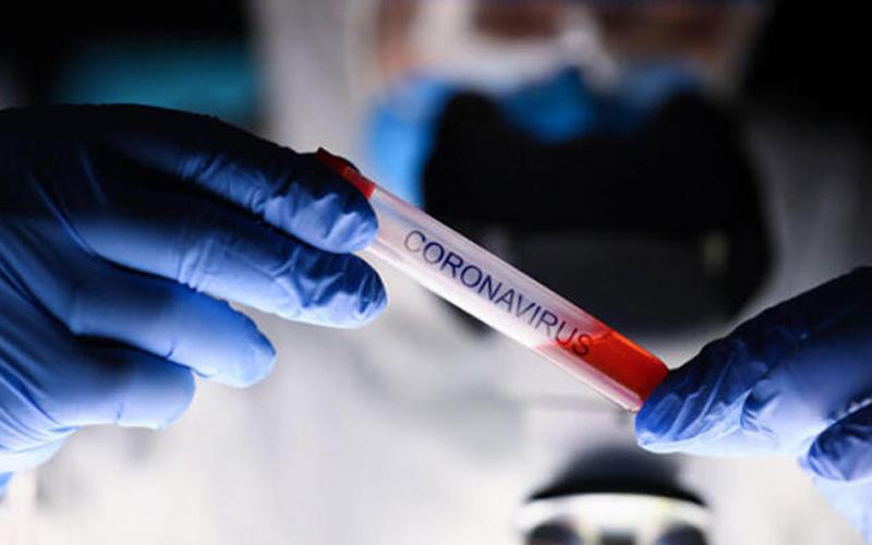 Soğuk hava deposunun 9 çalışanında coronavirüs çıktı