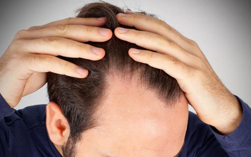 Coronavirüs geçiren hastalarda saç dökülmesi arttı